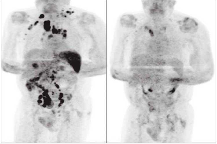 En Reino Unido se reportó el extraño caso de un paciente que se habría combatido un cáncer después de haberse contagiado de coronavirus.